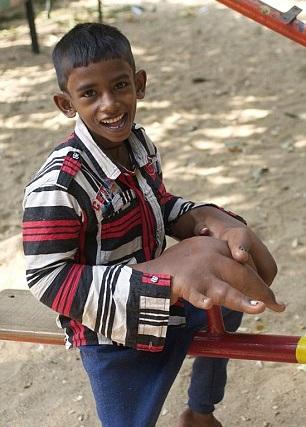 Tο αγόρι με τα μεγαλύτερα χέρια στον κόσμο![Photos]