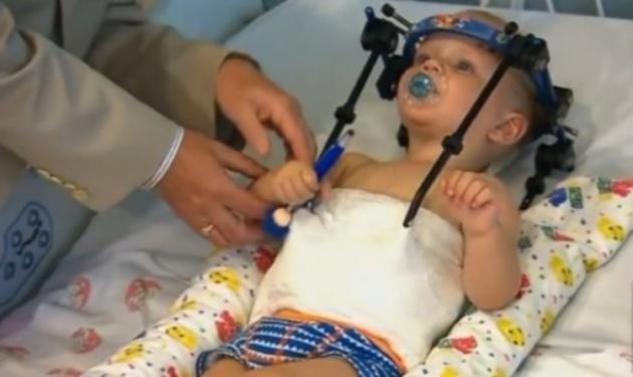 Aπίστευτο! Μωρό αποκεφαλίστηκε εσωτερικά και οι γιατροί ένωσαν το κεφάλι με το σώμα του!