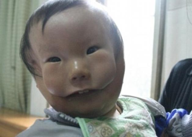 Ραγίζει καρδιές το αγόρι - μάσκα! Φαίνεται να έχει δυο πρόσωπα από γενετική διαταραχή!