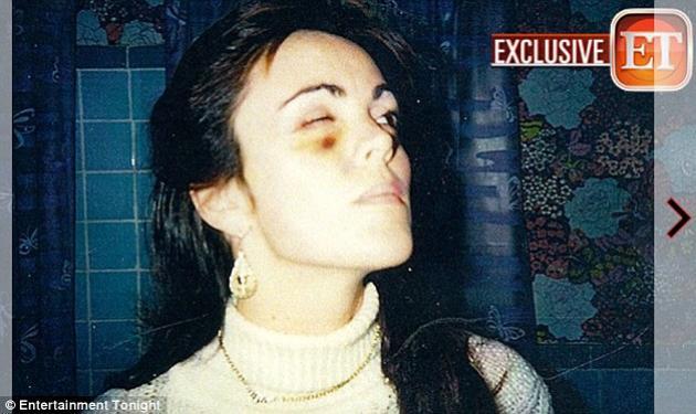 Η μητέρα της Lohan αποκαλύπτει για τον πρώην άντρα της: Με βίασε όσο η Lindsay κοιμόταν!