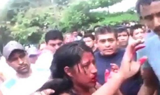 Σοκ στον πλανήτη από το λιντσάρισμα 16χρονου κοριτσιού! Την έκαψαν ζωντανή