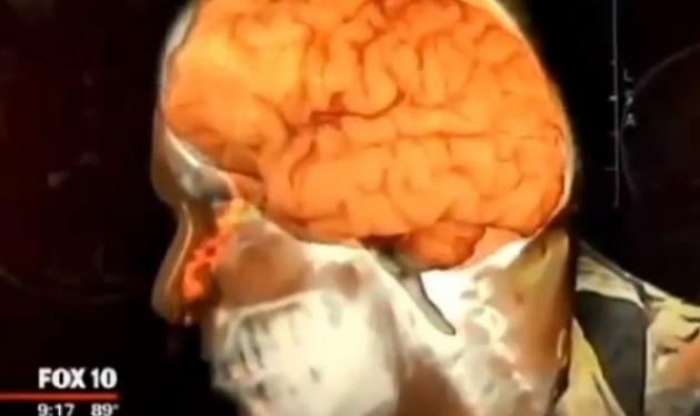 Δεν ήταν συναχωμένος… Από τη μύτη του έσταζε ο εγκέφαλος του! Video | tlife.gr