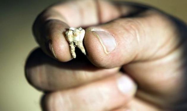 To δόντι που αλλάζει την ανθρώπινη ιστορία! | tlife.gr