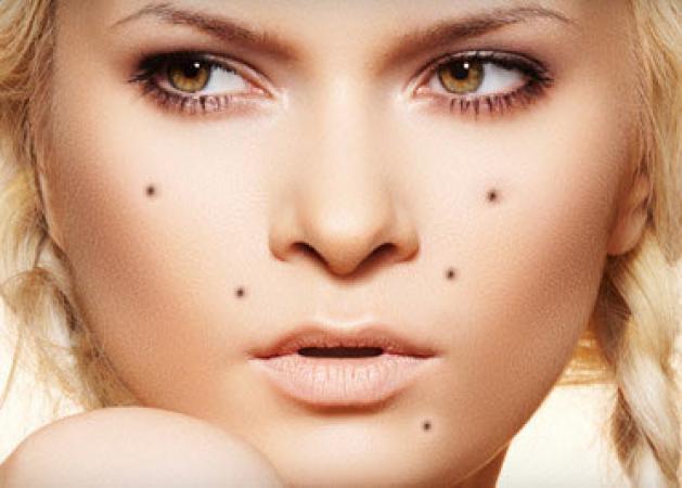 Ελιές στο δέρμα: Πώς θα καταλάβεις αν κάποια είναι καρκινική