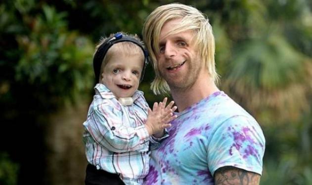 Ο Jono ταξίδεψε στην Αυστραλία για να συναντήσει παιδιά με την ίδια πάθηση | tlife.gr