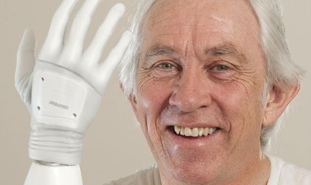 Ο πρώτος άντρας στο Ην. Βασίλειο που απέκτησε… βιονικό χέρι! | tlife.gr