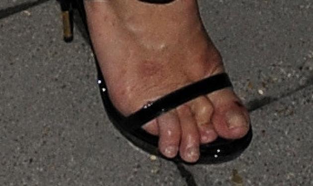 Κι όμως αυτά τα άσχημα δάχτυλα ανήκουν σε διάσημο top model!