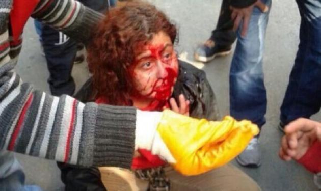 Βάφτηκε με αίμα η Πρωτομαγιά στην Κωνσταντινούπολη – Η Ταξίμ καιγόταν και οι αστυνομικοί έβγαζαν… selfie! | tlife.gr