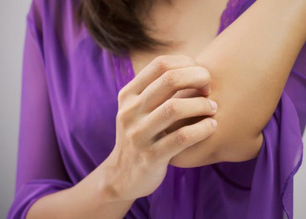 Κουνούπια: Το κόλπο πριν βγεις έξω για να μην σε τσιμπάνε | tlife.gr