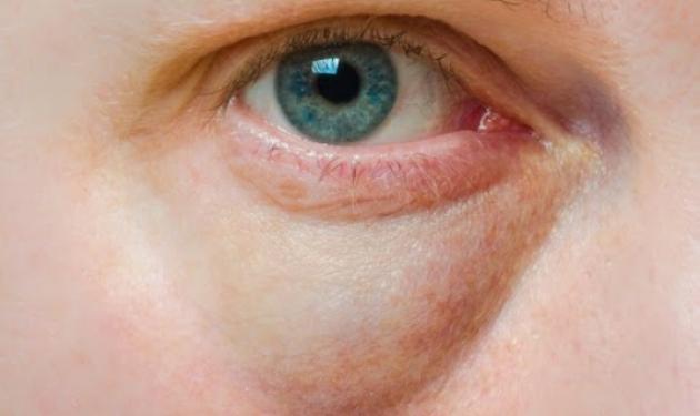Πώς θα απαλλαγείς από τους «μαύρους κύκλους» και τις «σακούλες» στα μάτια | tlife.gr