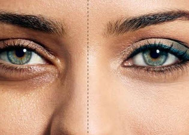 Ποιες φυσικές ουσίες αφαιρούν τις σακούλες κάτω από τα μάτια | tlife.gr