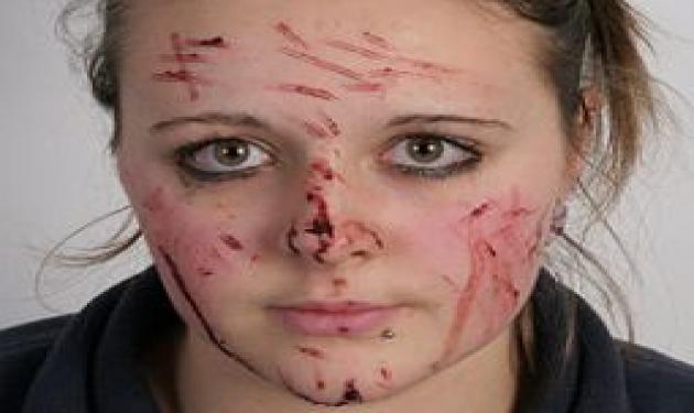 Πετσόκοψαν με 41 μαχαιριές το πρόσωπο 16χρονης!