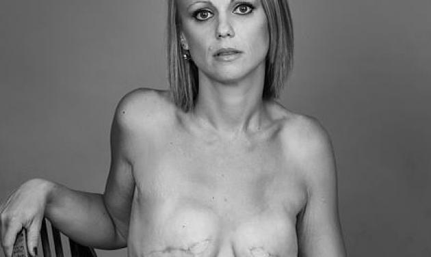 Σόκαρε τους πάντες βάζοντας στο facebook γυμνές φωτογραφίες της μετά από διπλή μαστεκτομή!   tlife.gr