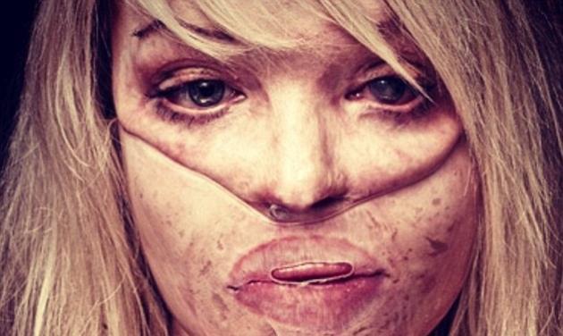 Πως είναι σήμερα μετά από δεκάδες πλαστικές η γυναίκα που είχε παραμορφωθεί από οξύ που της έριξε ο φίλος της | tlife.gr