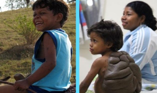 Το «αγόρι-χελώνα» ζει πλέον μια φυσιολογική ζωή μετά την επέμβαση. Φωτογραφίες | tlife.gr