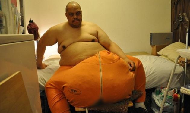Ο άνθρωπος με τους γιγαντιαίους όρχεις! Πάσχει από σπάνια ασθένεια | tlife.gr