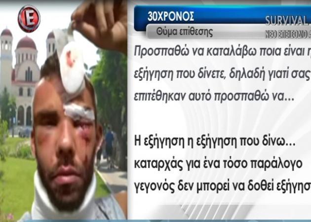 Θύμα άγριου ξυλοδαρμού καταγγέλλει ότι έπεσε 30χρονος στο Ρέθυμνο – Τι λέει ο ίδιος στην Tatiana Live | tlife.gr