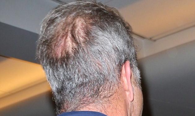 Ποιος πασίγνωστος ηθοποιός του Hollywood ξεκίνησε να έχει αραίωση μαλλιών; | tlife.gr