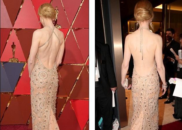 Nicole Kidman: Ο … πανικός της από τα κόκκινα σημάδια που της προκάλεσε το φόρεμά της! Πώς το διόρθωσε; [pics] | tlife.gr