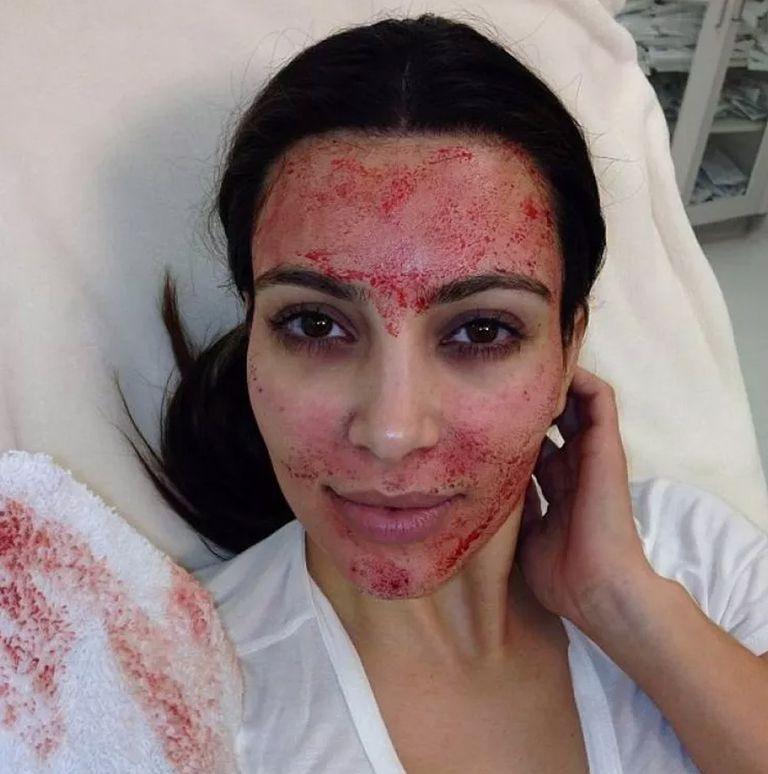 Η Kim Kardashian μίλησε για την χειρότερη beauty εμπειρία που είχε ποτέ! | tlife.gr