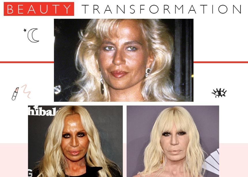 Donatella Versace: η μεταμόρφωσή της από το 1992 μέχρι σήμερα!