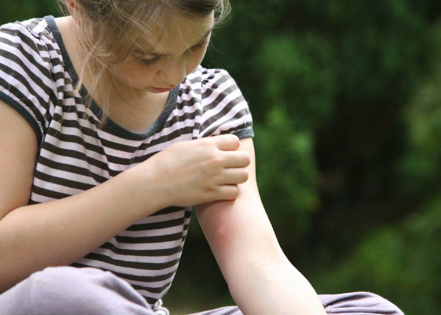 Τα κουνούπια δεν πάνε διακοπές: Ο Δρ. Μαζάνης προτείνει τρόπους προστασίας για τα παιδιά | tlife.gr