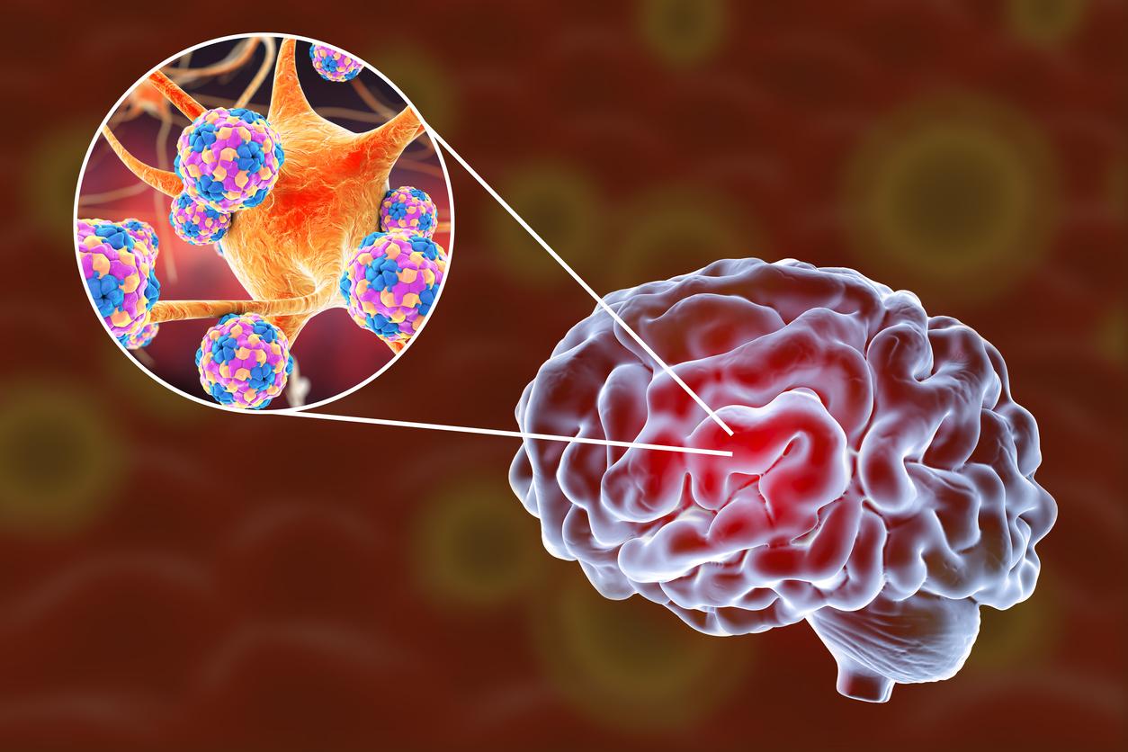 Προσοχή στην ύπουλη εγκεφαλική ασθένεια που μοιάζει με γρίπη! | tlife.gr