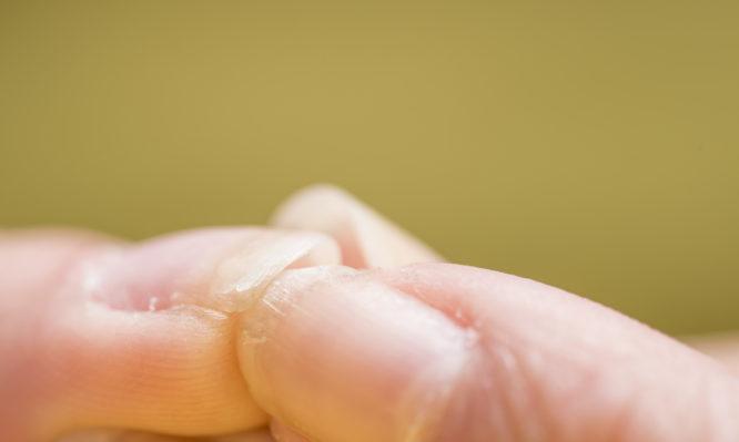 Αν τα νύχια σου είναι όπως σε αυτές τις εικόνες, ίσως έχεις πρόβλημα υγείας | tlife.gr
