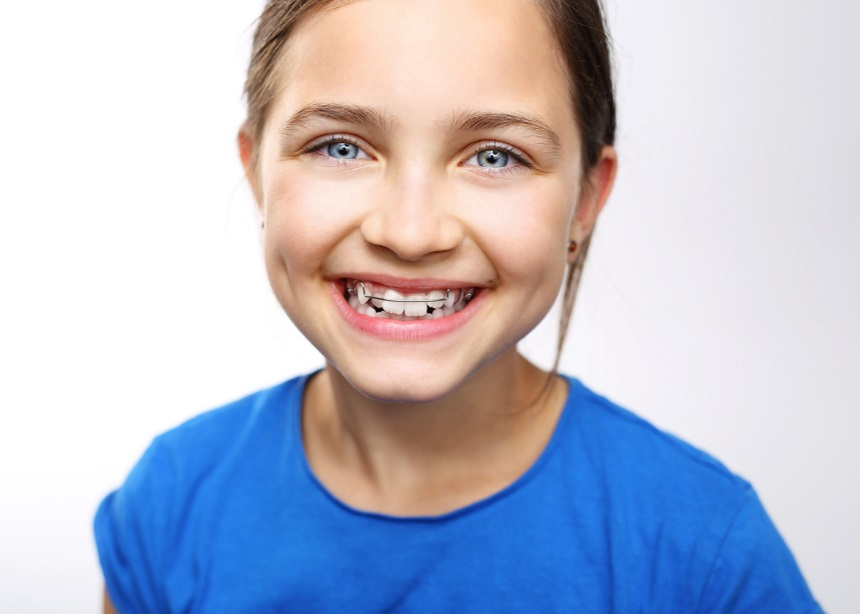 "Tooth Fairy: Γιατί τα σιδεράκια στην εφηβεία δεν σημαίνουν το ""τέλος του κόσμου"""