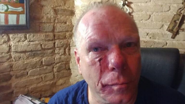 Σοκαριστικό ηχητικό ντοκουμέντο από τη φασιστική επίθεση στον Θωμά Ιακόμπι | tlife.gr