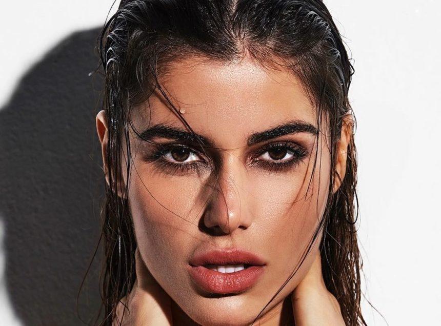 Ιωάννα Μπέλλα: Μας δείχνει τα χείλη της ένα μήνα μετά την «διόρθωση» και στέλνει το δικό της μήνυμα   tlife.gr