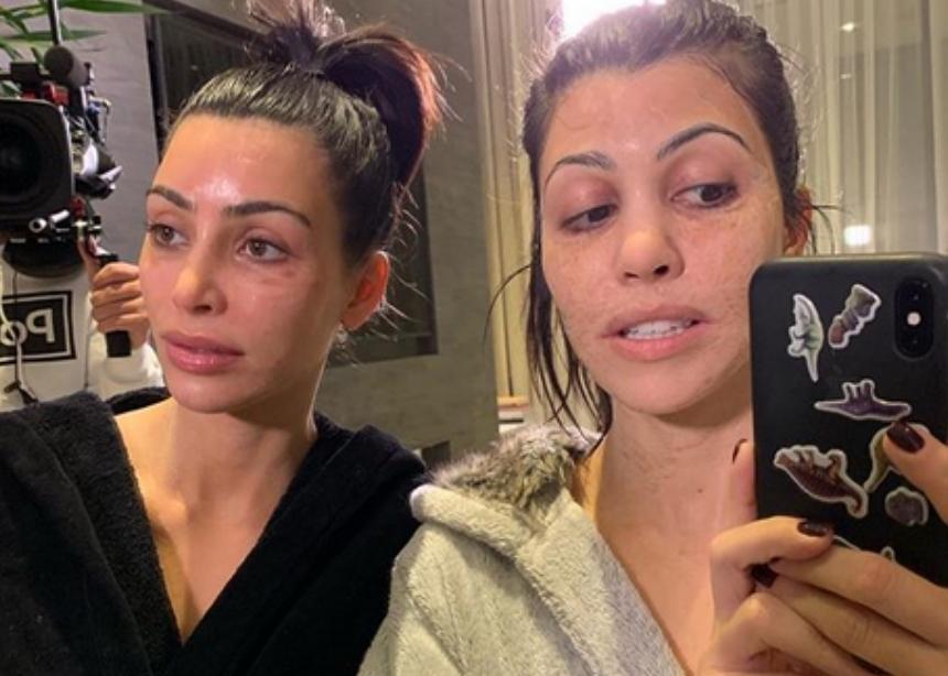 Τι έπαθαν στο πρόσωπο η Kim και η Kourtney Kardashian; | tlife.gr