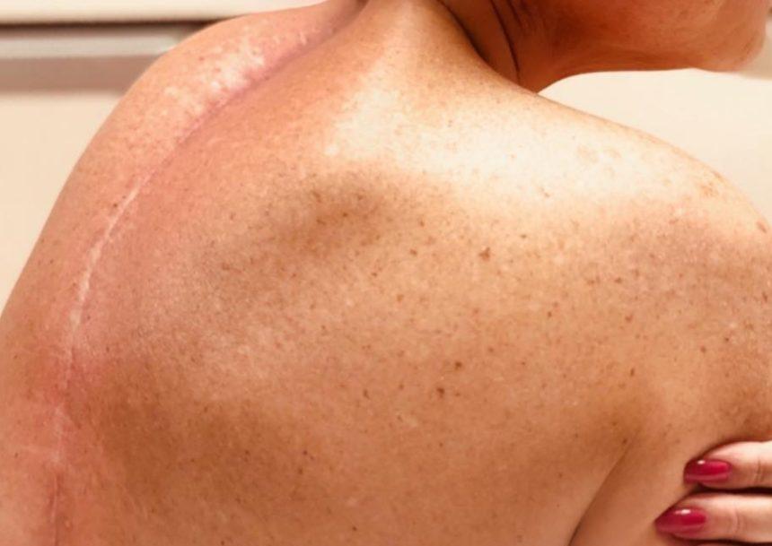 Πρώην παίκτρια ριάλιτι δείχνει την ουλή από το χειρουργείο στη σπονδυλική της στήλη και σοκάρει | tlife.gr