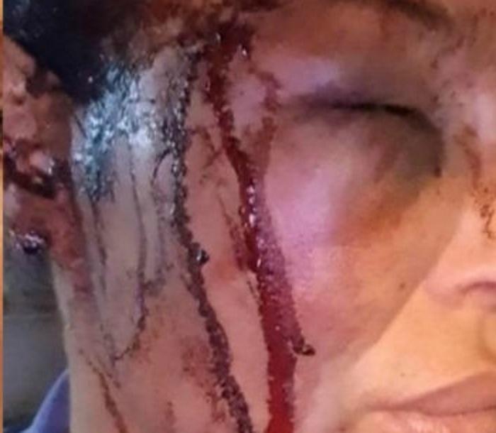 Σοκάρουν οι φωτογραφίες της κακοποιημένης Μαντώς Τζαβάρα από τον γνωστό μπασκετμπολίστα σύντροφό της! | tlife.gr