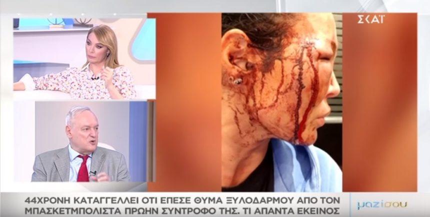 Μαντώ Τζαβάρα: Συγκλονίζει στο «Μαζί σου» η περιγραφή της για τον άγριο ξυλοδαρμό από τον σύντροφό της! VIDEO | tlife.gr