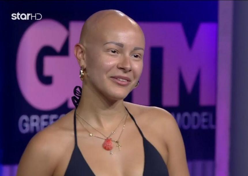 GNTM 2: Η παίκτρια με την αλωπεκία συγκίνησε τους κριτές [video] | tlife.gr