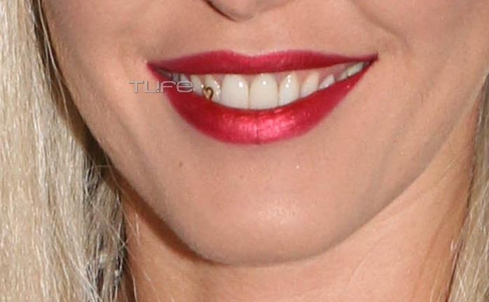 Ποια διάσημη Ελληνίδα τραγουδίστρια έχει αυτό το κόσμημα στο δόντι της; [pics] | tlife.gr
