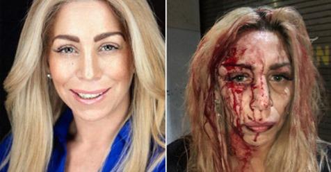 43χρονη ηθοποιός ξυλοκοπήθηκε άγρια στο Μανχάταν επειδή ήταν… λευκή! Φωτογραφίες