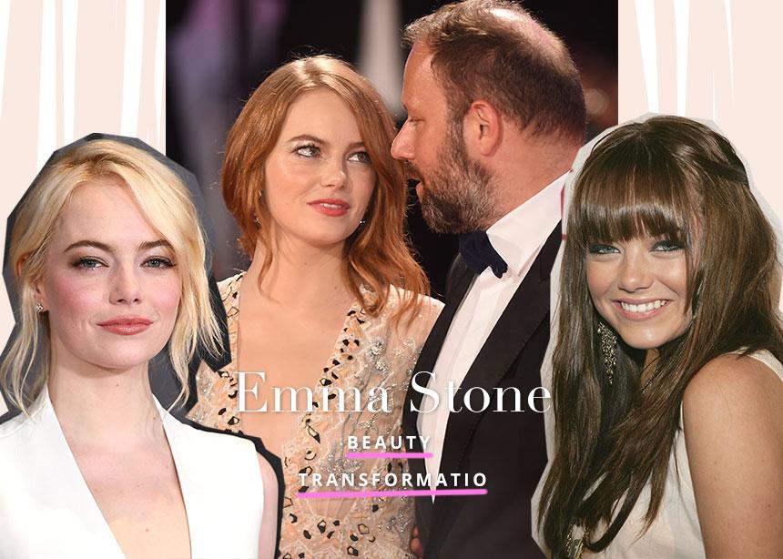 Emma Stone: το beauty transformation της μούσας του Γιώργου Λάνθιμου! | tlife.gr