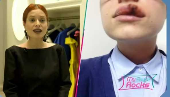 My Style Rocks: Η παίκτρια μιλάει για το σοβαρό της ατύχημα, όταν σκύλος την δάγκωσε στα χείλη! Βίντεο   tlife.gr
