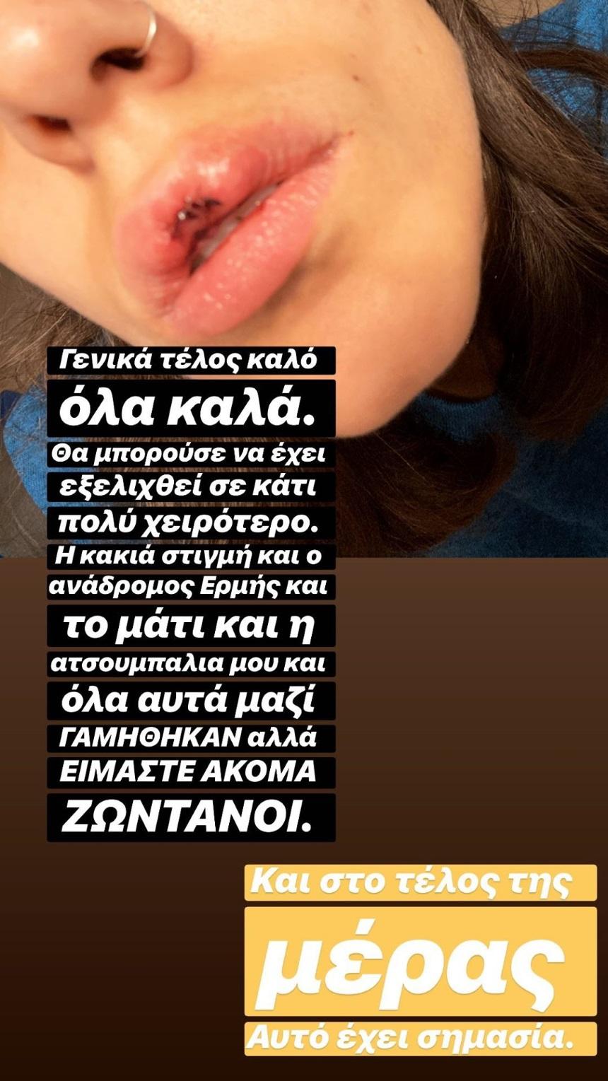 Ατύχημα για την Άννα Μαρία Βέλλη - Παραμορφώθηκαν τα χείλη της [pics]