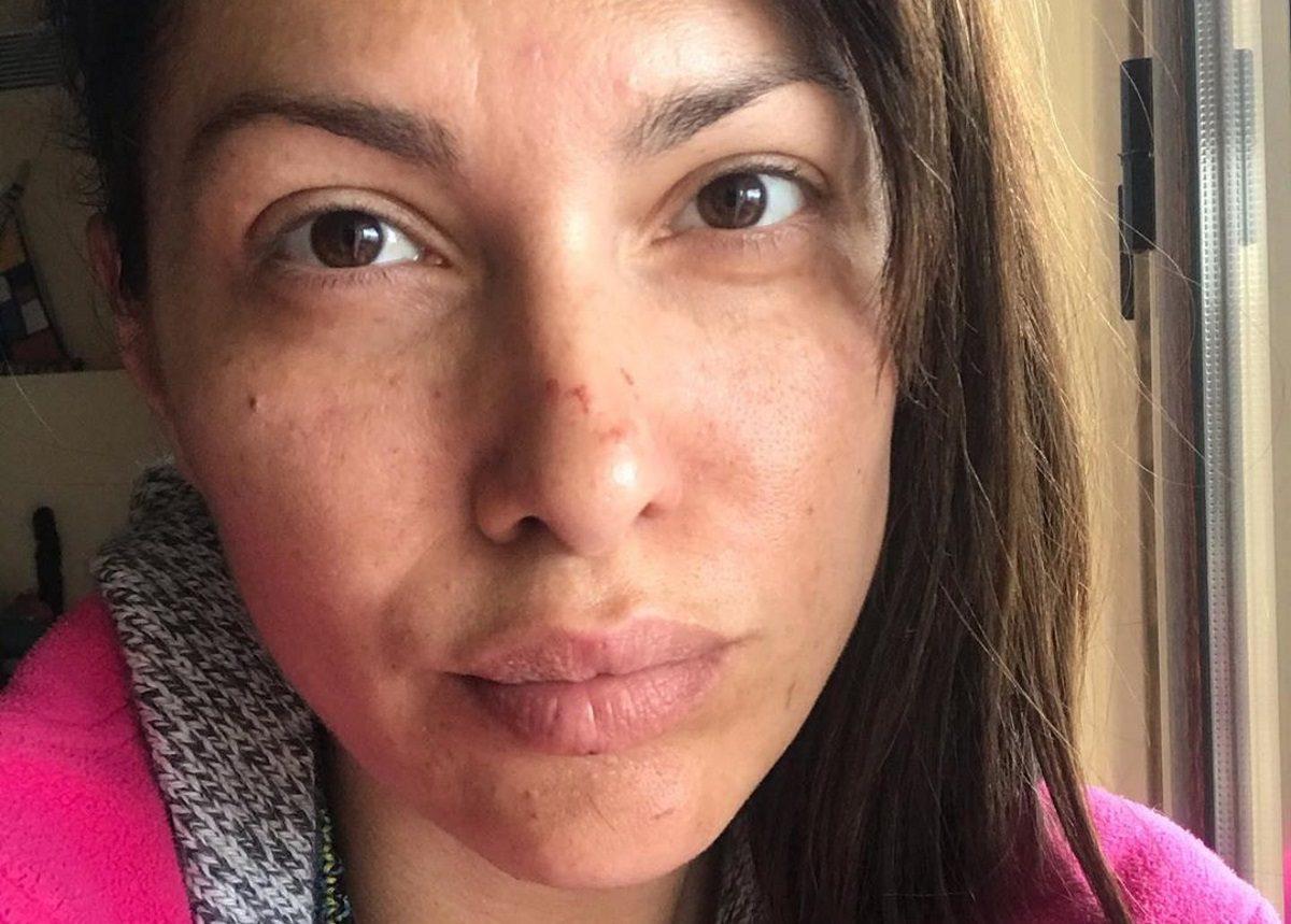 Κλέλια Ρένεση: Μας δείχνει το γεμάτο γρατζουνιές πρόσωπό της – Τι συνέβη; | tlife.gr
