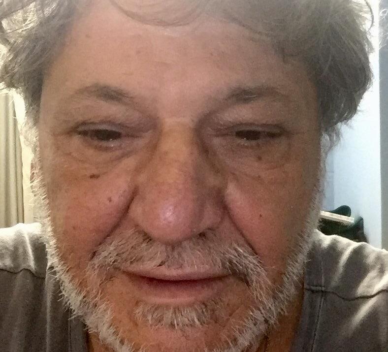 Εσπευσμένα στο νοσοκομείο ο ηθοποιός Γιώργος Παρτσαλάκης
