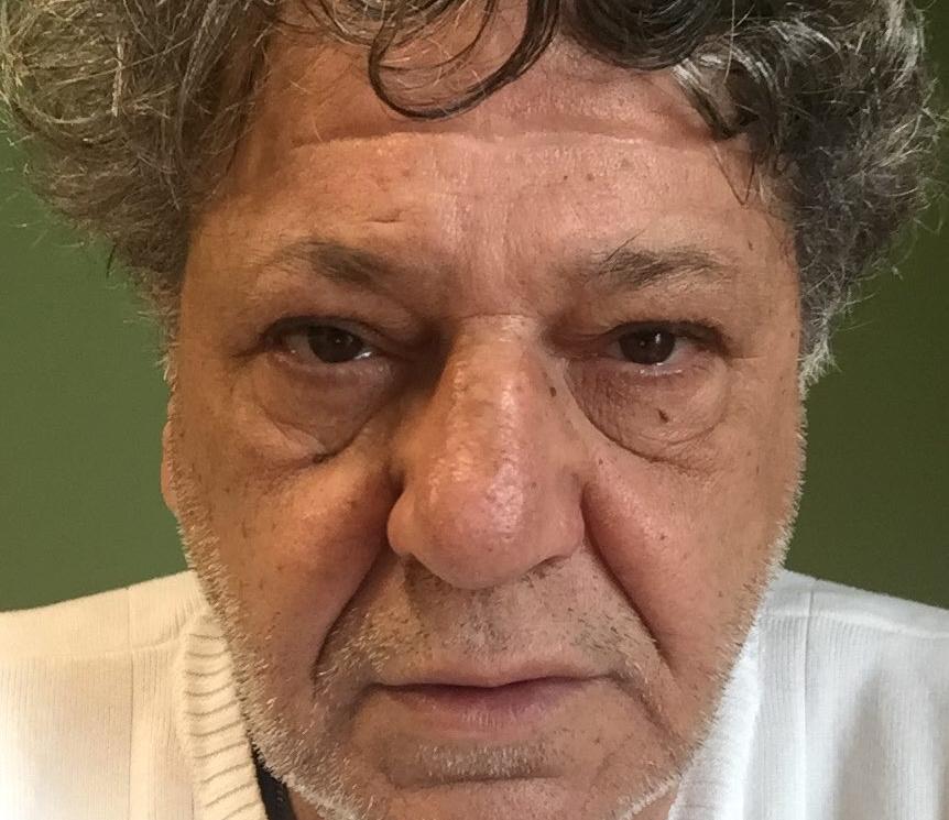 Γιώργος Παρτσαλάκης: Νοσηλεύεται στο Τζάνειο – Τα νεότερα για την υγεία του