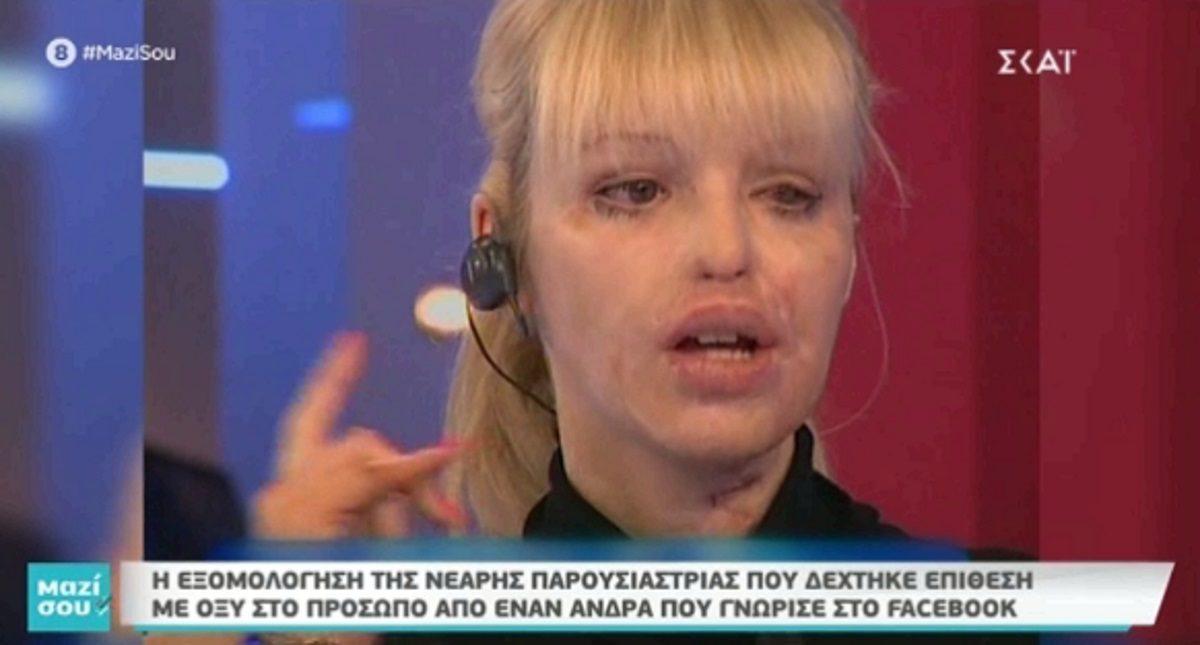 Η εξομολόγηση της Κέιτι Πάιπερ για την επίθεση με οξύ που δέχτηκε στο πρόσωπο στα 24 χρόνια της – Πώς είναι η ζωή της σήμερα; Βίντεο | tlife.gr