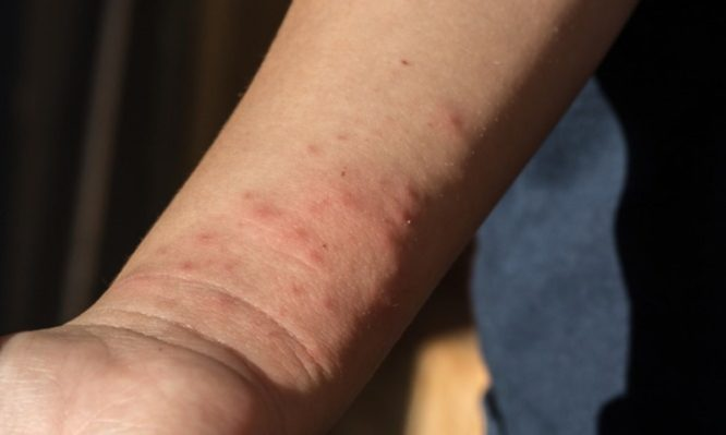 Κουνούπια: Το κόλπο πριν βγεις έξω για να μην σε τσιμπάνε! | tlife.gr