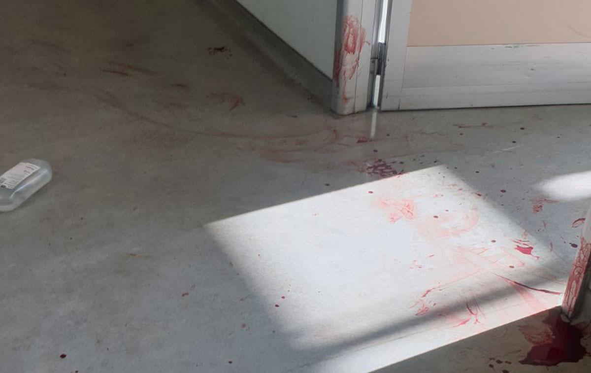 Επίθεση στο «Αττικόν»: Μαχαίρωσε τη νοσοκόμα γιατί νόμιζε ότι τον χειρούργησαν άδικα