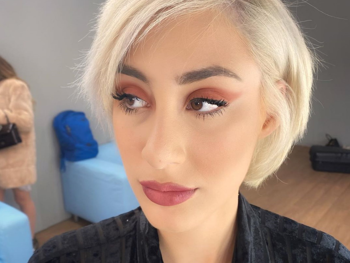 Κιάρα Μαρκέζη: Η εγγονή του Άκη Τσοχατζόπουλου έκανε πλαστική επέμβαση στη μύτη