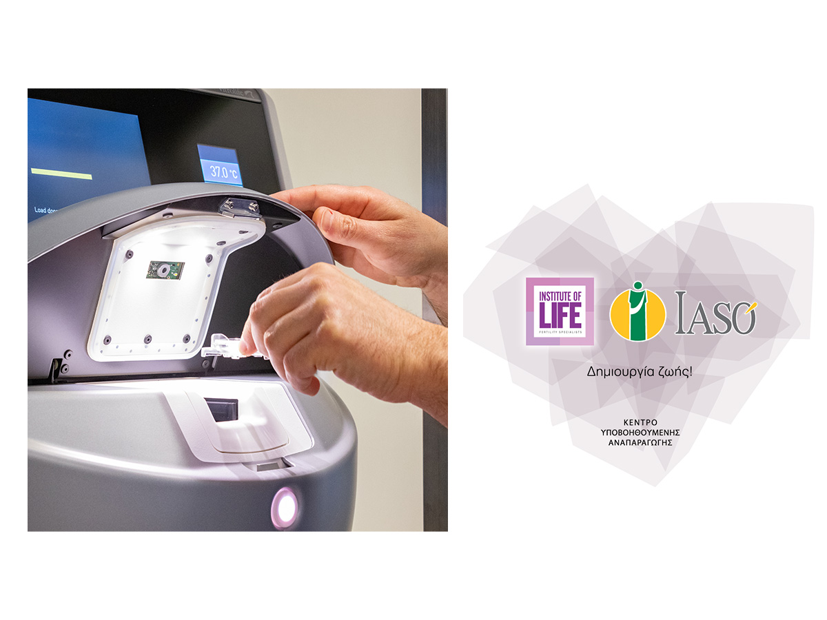 Η Institute οf Life – ΙΑΣΩ μόλις έκανε ένα σπουδαίο βήμα στον τομέα της εξωσωματικής γονιμοποίησης