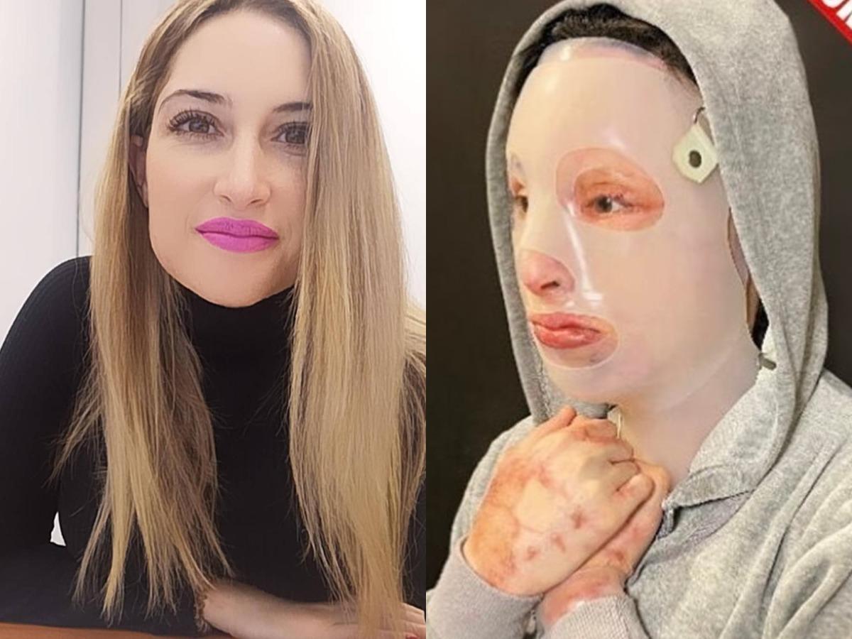 """Επίθεση με βιτριόλι: Αλλεπάλληλες χειρουργικές επεμβάσεις για την Ιωάννα Παλιοσπύρου – """"Βρίσκεται σε μια άτυπη φυλακή"""""""